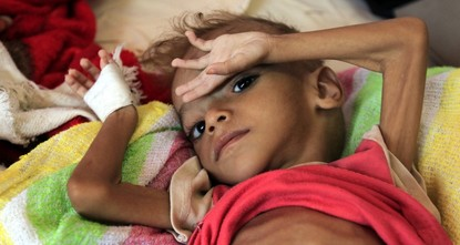 Yemen on brink of world's worst famine in last century