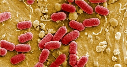 pSuperbug bacteria found in people, animals and food across the European Union pose an alarming threat to public and animal health having evolved to resist widely used antibiotics, disease and...