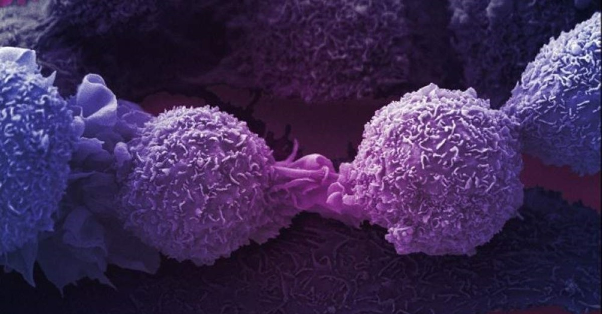 Lung cancer cells (Photo by Anne Weston)