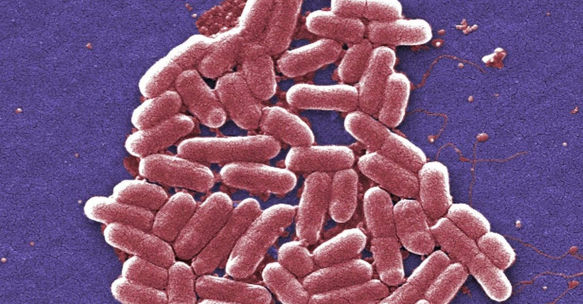 This 2006 colorized scanning electron micrograph image made available by the Centers for Disease Control and Prevention shows the O157:H7 strain of the E. coli bacteria. (CDC via AP Photo)