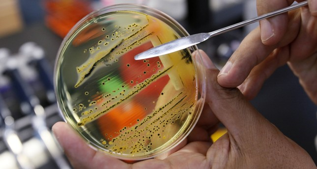 In this Monday, May 17, 2010 file photo, Dr. Mansour Samadpour points out a growth of of salmonella in a petri dish. (AP Photo)