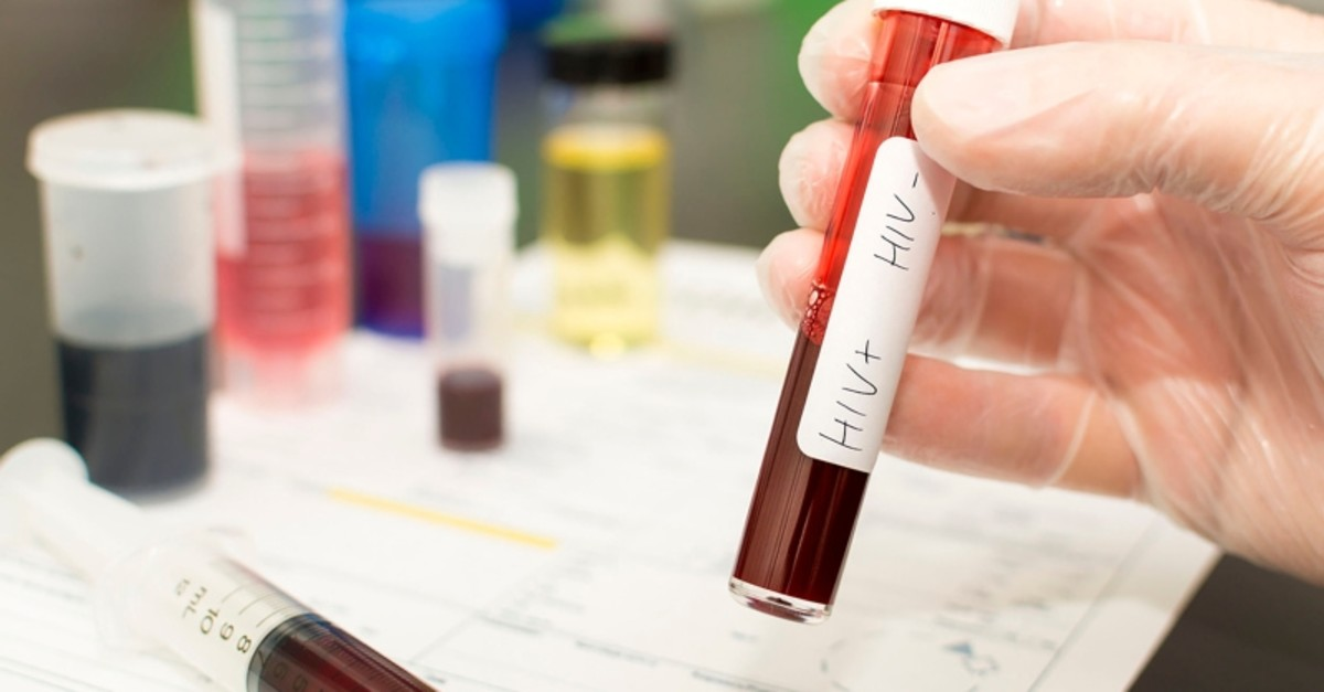Holding a test tube with blood in it. Handwritten label with HIV+ and HIV- on it with the positive tick box crossed. (FILE Photo)