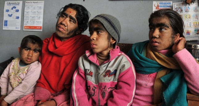 A Nepalese family suffering from a rare genetic condition called hypertrichosis in which hair grows all over the face arrived in the Nepalese capital of Kathmandu for treatment of their werewolf-like appearance, March 25, 2012. (AFP Photo)