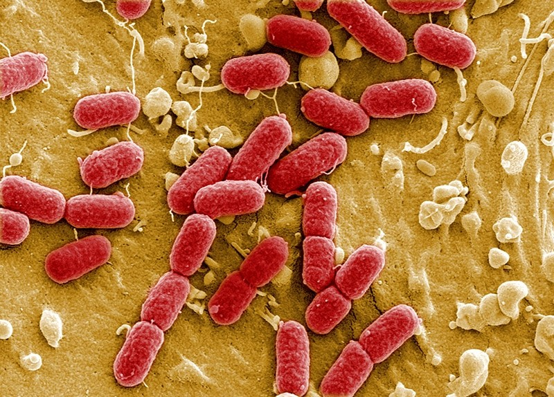 An undated image taken with electronic microscope shows EHEC bacteria (enterohaemorrhagic Escherichia coli) in Helmholtz Centre for Infection Research in Brunswick, Germany. (Reuters Photo)