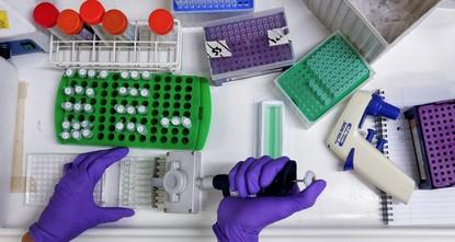 Turkish scientist seeks to revolutionize cancer diagnostics with artificial intelligence
