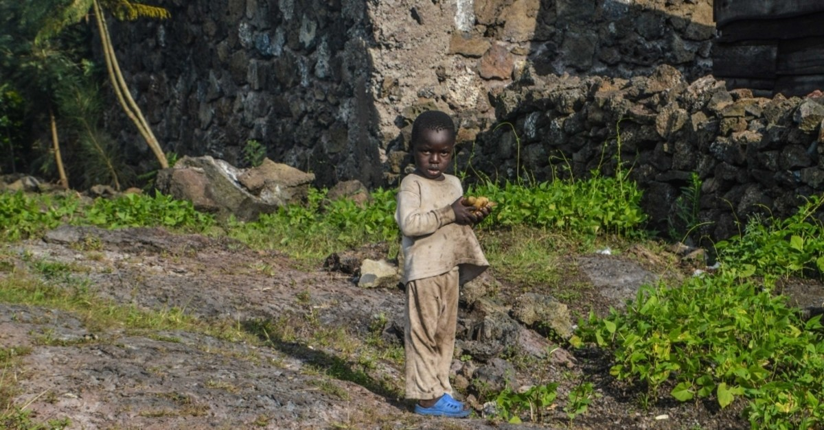 A small boy holds bread in his hands in the Democratic Republic of the Congo, where 15 million women and children suffer from malnutrition. (AA Photo)
