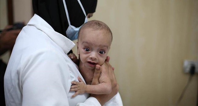 A Syrian baby is seen in doctor's arms as him and other babies go through medical examinations due to malnutrition in de-conflict zone of Eastern Ghouta of Damascus, Syria on October 14, 2017. (Anadolu Agency)