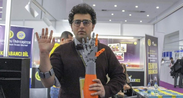 Prosthetic arms with AI hope for the disabled