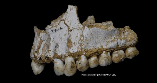 This photo provided by Paleoanthropology Group MNCN-CSIC  shows an El Sidron upper jaw: a dental calculus deposit is visible on the rear molar, right, of this Neanderthal. (AP Photo)