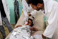 Jemen: Mind. 39 Tote bei Angriff auf Bus mit Kindern