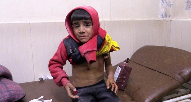 A child injured by Assad regime airstrike on Idlib receives medical treatment on Nov. 27, 2018. (AA Photo)