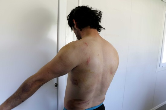 Migrants tortured by Greek police, illegally pushed back to