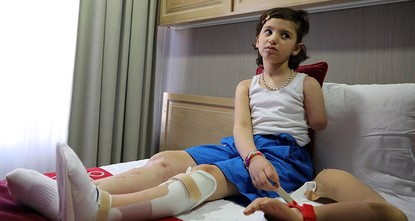 ريان طفلة سورية تستعيد الأمل في مشفى تركي بعد أن مزقت الحرب جسدها