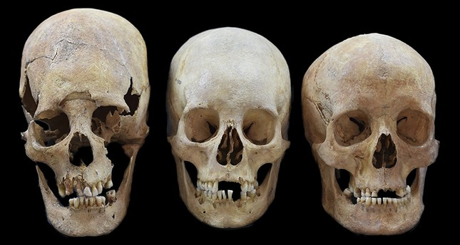 Undated photo provided by the State collection for Anthropology and Palaeoanatomy Munich shows strong, intermediate and non-deformed skulls, from left, from the Early Medieval sites Altenerding and Straubing in Bavaria, Germany. (AP Photo)