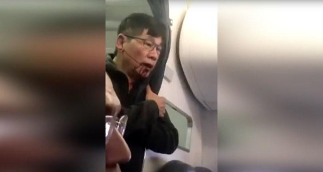 Passenger dragged off United plane has concussion, lost teeth: lawyer