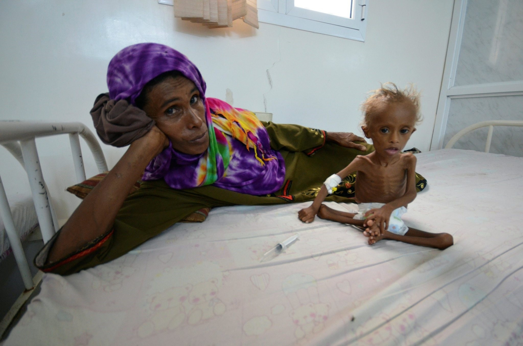 A woman rests on a bed next to her malnourished son at a hospital in the Red Sea port city of Houdieda, Yemen September 9, 2016. (REUTERS Photo)