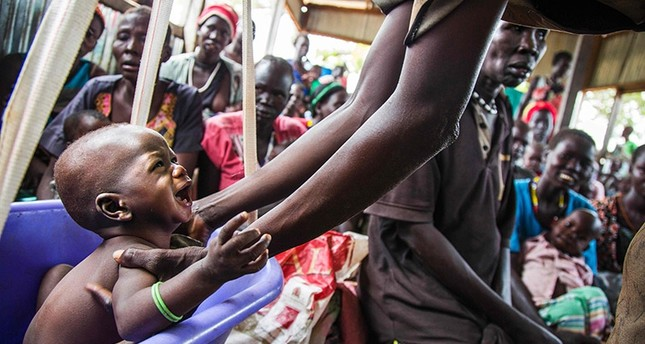 A mother weights her malnourished child on May 31, 2017, in a nutrition centre run by the International Rescue Committee (IRC)  in Panthau, Northern Bahr al Ghazal, South Sudan. (AFP Photo)