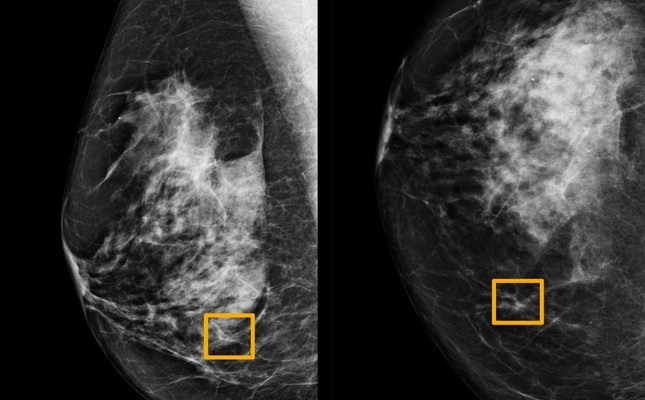 A yellow box indicates where an artificial intelligence AI system found cancer hiding inside breast tissue, in an undated photo released by Northwestern University in Chicago, Jan. 1, 2020. Northwestern University via Reuters