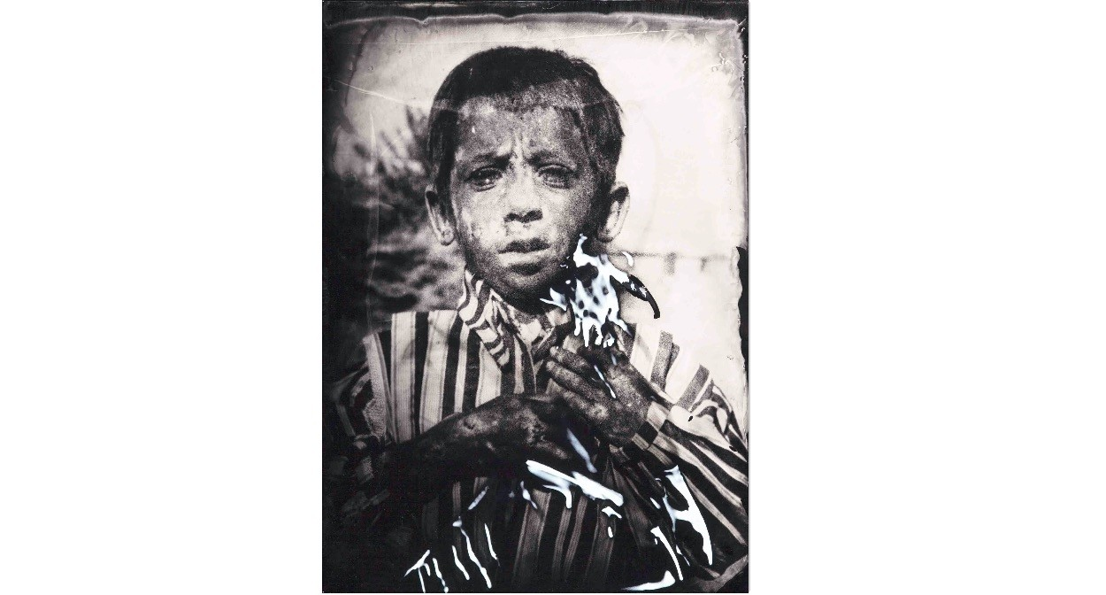 From one of the more striking series of found negative film presented for u201cFading Awayu201d the artist Yusuf Murat u015een resurrected the living presence of children in u015eanlu0131urfa affected by leprosy, altered with wet collodion on plexiglass.