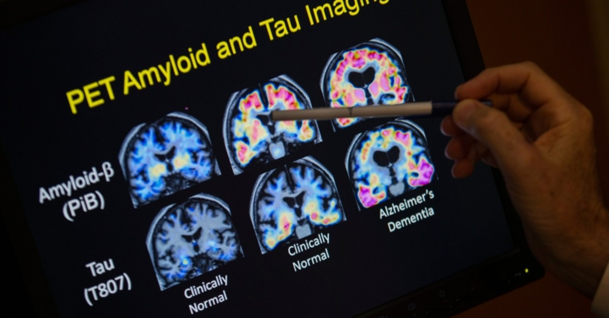 In this May 19, 2015, file photo, a doctor points to PET scan results that are part of a study on Alzheimer's disease at a hospital in Washington. (AP Photo)