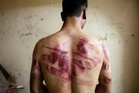 من ضحايا التعذيب في سجون الأسد (من الأرشيف)