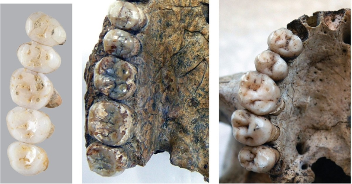 A handout image made available by Florent Detroit and taken on March 15, 2019 compares the fossil teeth of the newly discovered species Homo Luzonesis and that of Errectus Sapiensa unearthed during the excavation in in northern Philippines. (AFP)