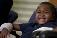 Child first in the world to undergo successful hand transplant