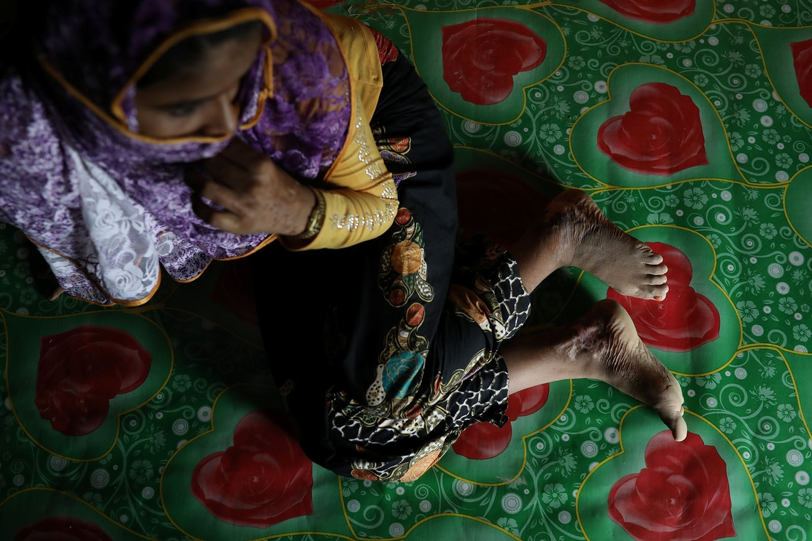 Begum, a Rohingya rape victim, shows her scars as she poses for a picture in Teknaf, Bangladesh, June 25, 2018. Picture taken June 25, 2018.