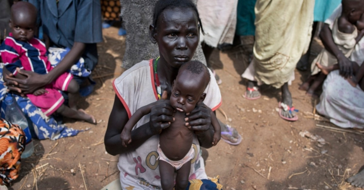 In this File photo taken Wednesday, April 5, 2017, Abuk Garang holds her 7-month-old son William Deng, as she and others walk to a food distribution site in Malualkuel in the Northern Bahr el Ghazal region of South Sudan (AP Photo)