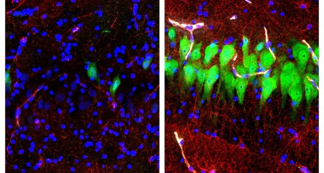 Images provided by the Yale School of Medicine in April 2019 shows stained microscope photos of neurons, astrocytes, and cell nuclei from a pig brain left untreated for 10 hours after death, and another with a blood substitute. (AP Photo)
