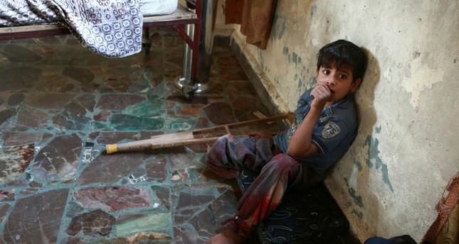 Some 206 children were reportedly killed due to malnutrition caused by the Syrian's regime blockade of East Ghouta.