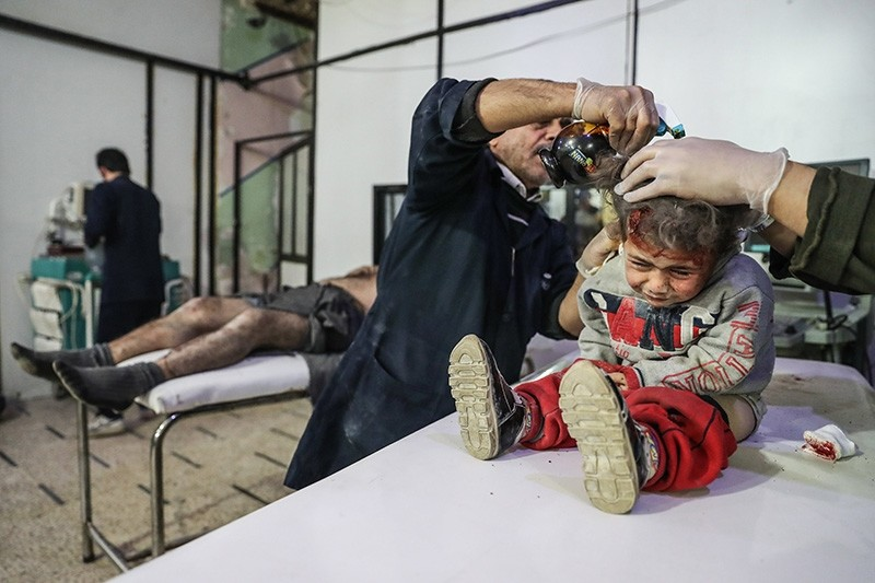 An injured child receives treatment next to white helmets volunteer reportedly injured in airstrikes at a makeshift clinic in Douma, Syria, 17 November 2017 (EPA Photo)