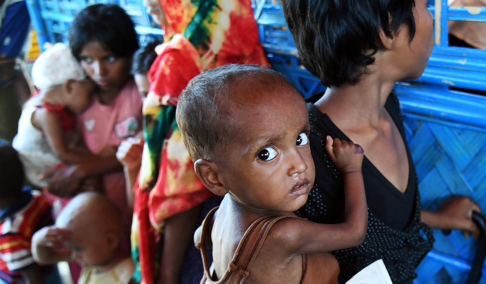 Zahid Hasan, the 1.5 years old Rohingya Muslim refugee with her sister waits to see a doctor to receive treatment for severe malnutrition at the Balukhali refugee camp in Bangladesh's Ukhia district on November 6, 2017 (AFP Photo)
