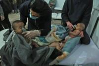 Bei einem mutmaßlichen Chemiewaffenangriff auf die syrische Oppositionshochburg Ost-Ghuta ist nach Angaben von Aktivisten ein Kind ums Leben gekommen. 13 weitere Menschen hätten nach dem Angriff am...
