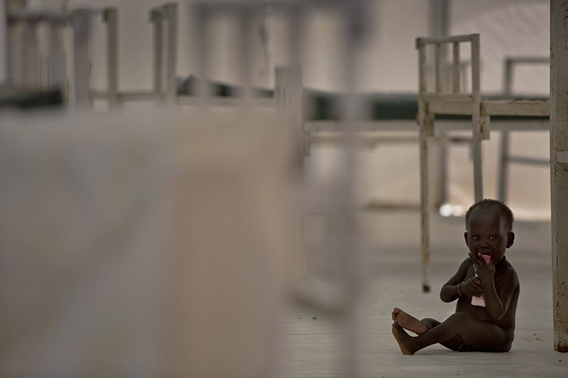 In this photo taken on Oct. 23, 2016, a young child sits on the floor in the therapeutic feeding unit of the Medecins Sans Frontieres hospital in the UN Protection of Civilians Camp in Bentiu, South Sudan. (AP Photo)