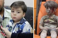 New photos of Aleppo boy Omran who became the symbol of devastation emerges