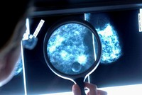 Scientists discover how breast cancer 'hides' in other parts of the body