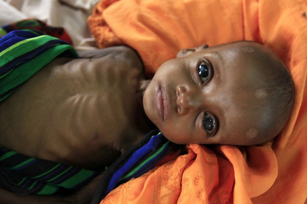 An unidentified severely malnourished Somali refugee child rests inside a ward at the Medecins Sans Frontieres (MSF) hospital at the Dagahale refugee camp in Dadaab, near the Kenya-Somalia border, July 28, 2011. (REUTERS Photo)