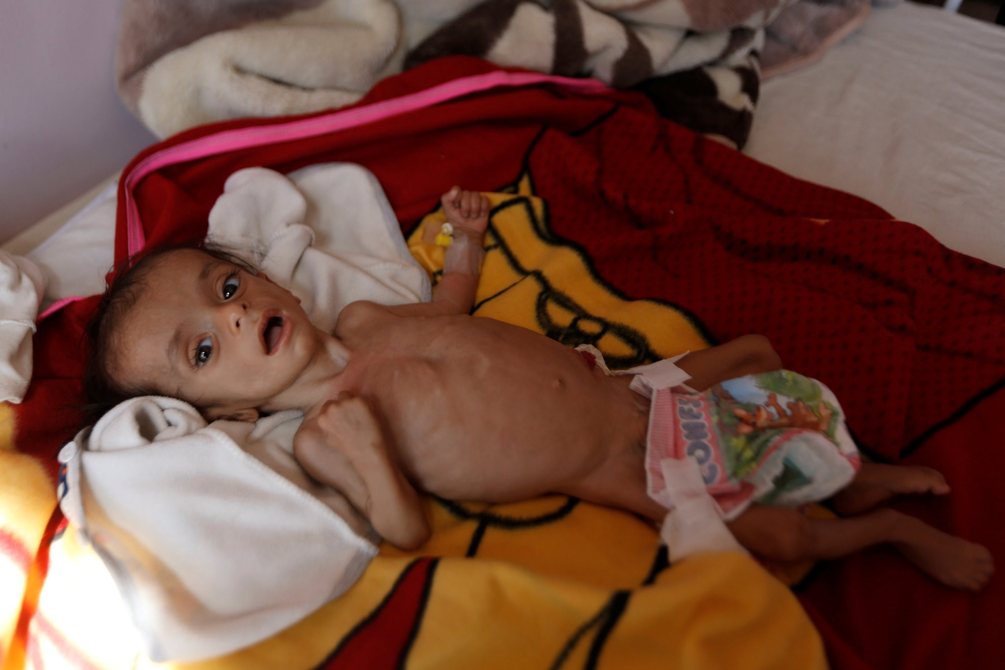 A malnourished boy lies on a bed at a malnutrition treatment center in Sanaa, Yemen November 21, 2017. (REUTERS Photo)
