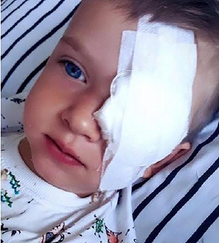 Three-year-old Olek Szymanski who's battling eye cancer