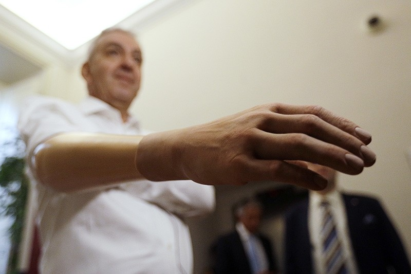 Marco Zambelli shows his prosthetic hand during an interview with the Associated Press in Rome Thursday, May 10, 2018. (AP Photo)