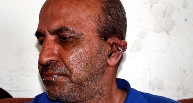 تركيا.. لاجئ إيراني يخيط فهمه وأذنيه ويهدد بتخييط عينيه