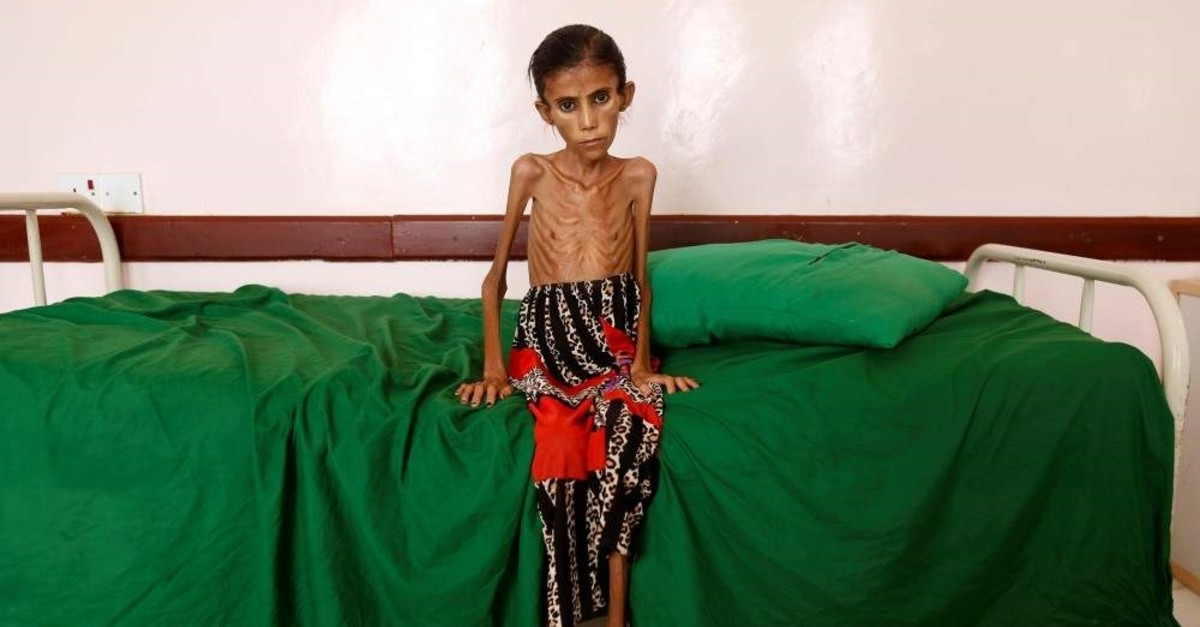 A malnourished girl sits on a bed at a clinic, Aslam, Yemen, Feb. 17, 2019. (REUTERS Photo)