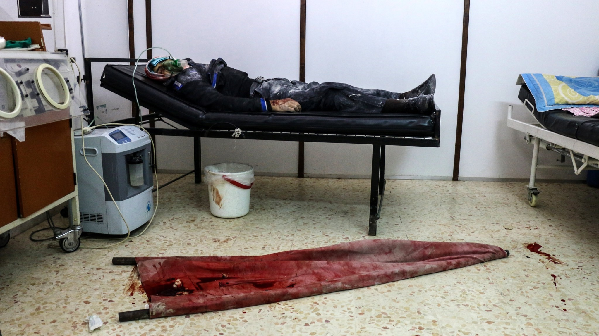 An injured man by an alleged sniper shots receives medical attention, in a field hospital at Rebel-held Barzeh, Syria, 18 February 2017. (EPA Photo)