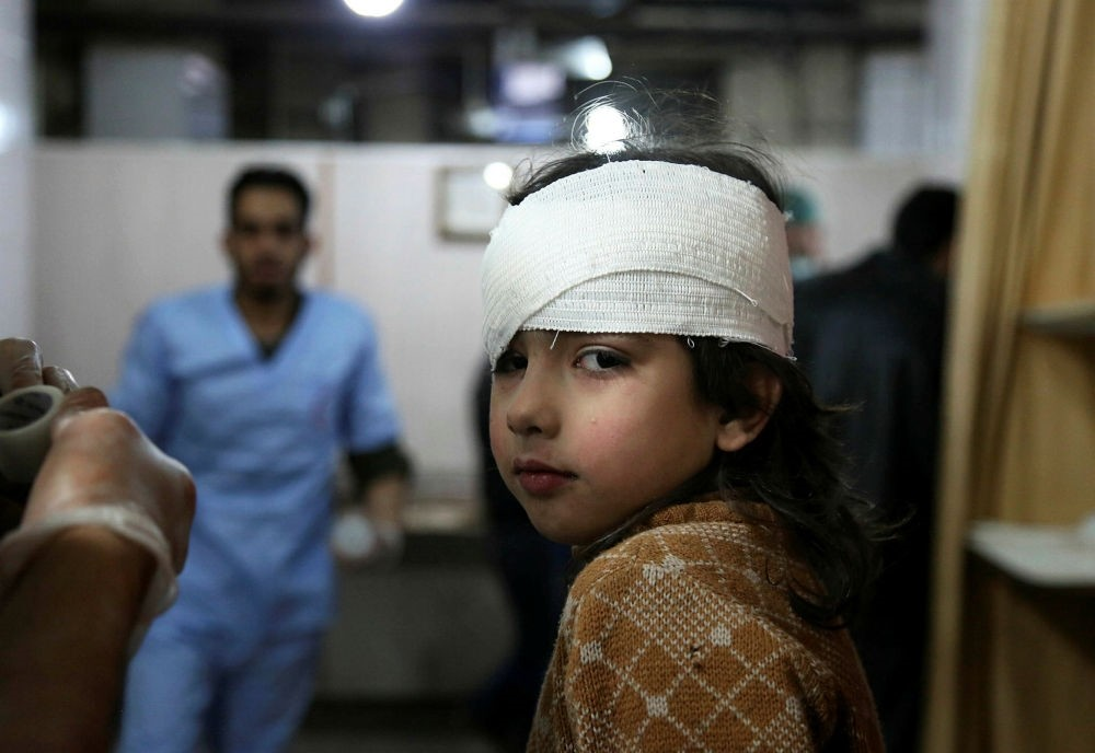 A wounded Syrian girl receives treatment at a makeshift hospital in Kafr Batna following Syrian regime airstrikes on the besieged Eastern Ghouta district, Feb. 21.