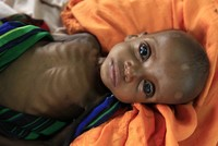 1.4 million Somali children may face death from starvation, UNICEF report says