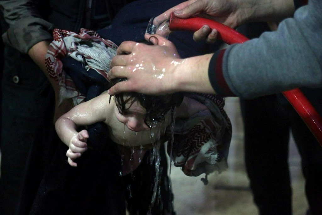 A child is treated in a hospital in Douma, eastern Ghouta in Syria, after what a medical relief group claims was a suspected chemical attack on April 7, 2018. (REUTERS Photo)