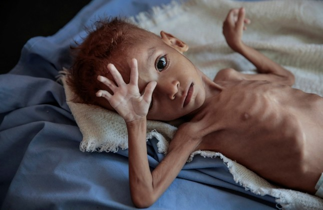 In this Oct. 1, 2018 file photo, a severely malnourished boy rests on a hospital bed at the Aslam Health Center, Hajjah, Yemen. (AP Photo)