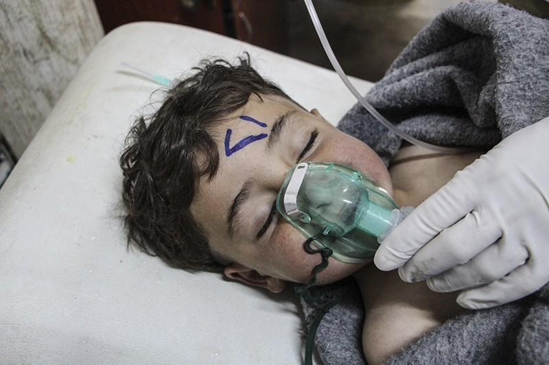 A Syrian child receives treatment after an alleged chemical attack at a field hospital in Saraqib, Idlib province, northern Syria, 04 April 2017. (EPA Photo)