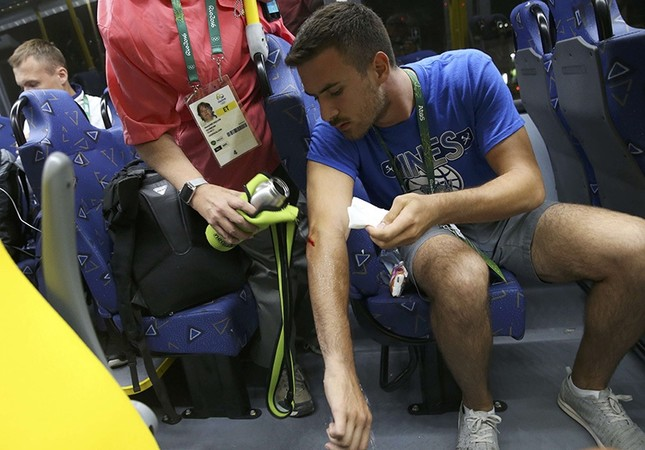 Technician Kaan Korkmaz has water poured on a lesion caused when a window of an official media bus shattered when driving accredited journalists to the Main Transport Mall from the Deodoro venue in Rio de Janeiro, August 9, 2016. (Reuters Photo)